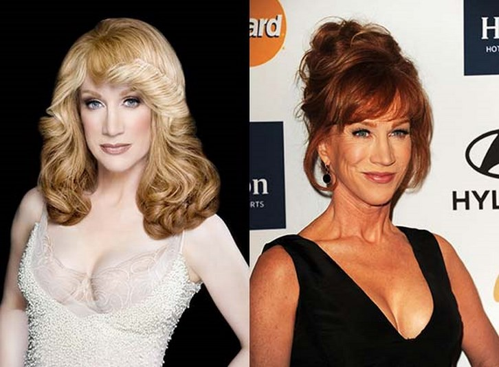 Kathy Griffin Plastic Surgery Before and After Photos