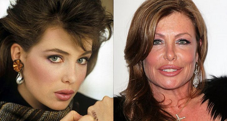 Kelly Lebrock Plastic Surgery Before and After Photos