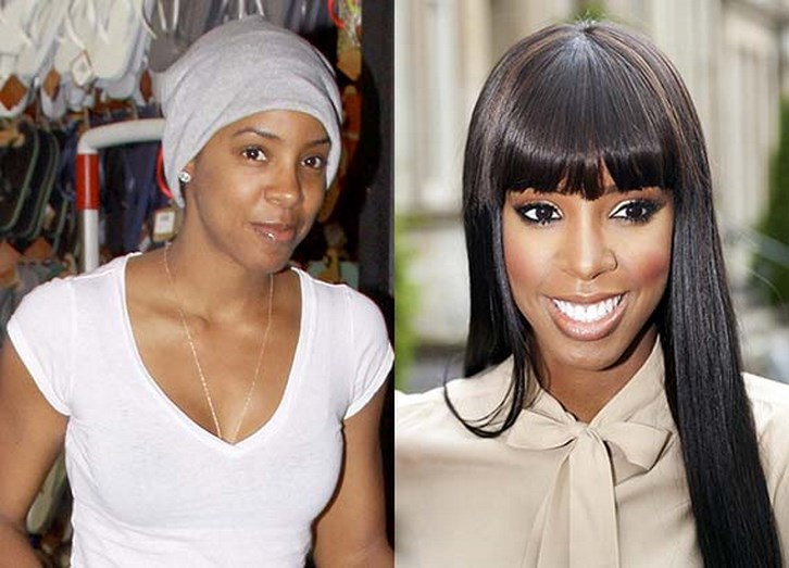 Kelly Rowland Nose Job Before and After Photos
