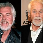 Kenny Rogers Plastic Surgery Before and After Pictures