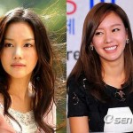Kim Ah Joong Plastic Surgery Before and After Images