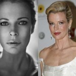 Kim Basinger Plastic Surgery Before and After Photos