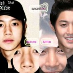 Kim Hyun Joong Plastic Surgery of Nose Job Before After