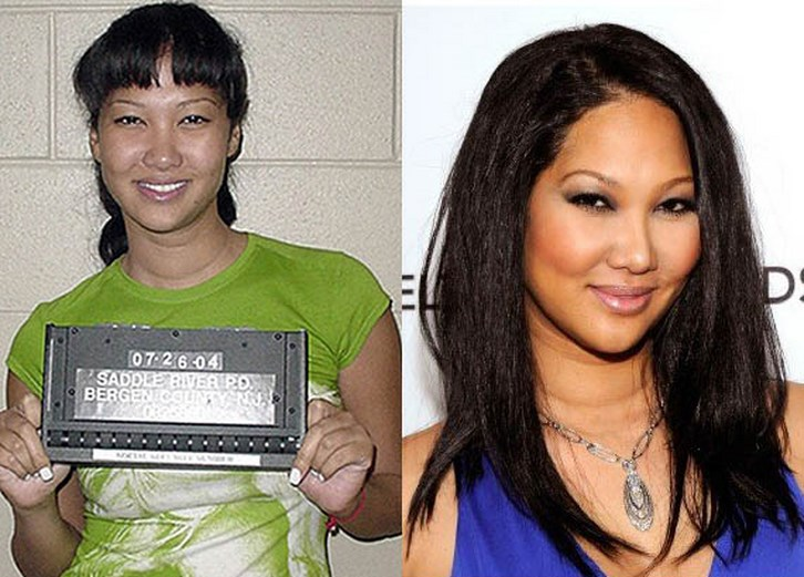 Kimora Lee Simmons Plastic Surgery Before and After Photos