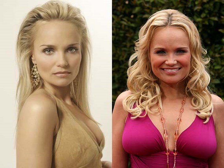 Kristin Chenoweth Plastic Surgery Before and After Photos