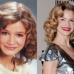 Kyra Sedgwick Plastic Surgery Before and After Photos