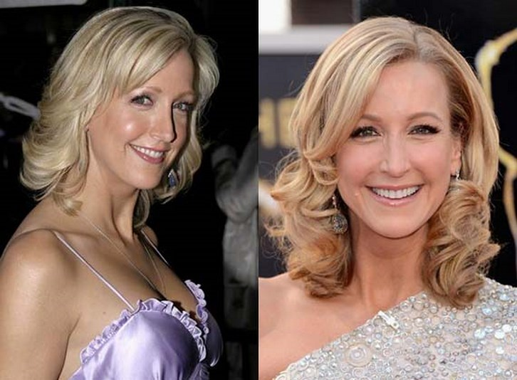 Lara Spencer Plastic Surgery Before and After Photos