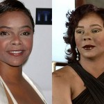 Lark Voorhies Plastic Surgery Before and After Images