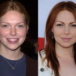 Laura Prepon Plastic Surgery Before and After Photos