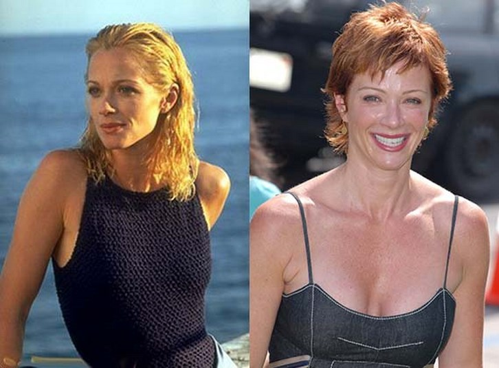 Lauren Holly Plastic Surgery Face Before and After Photos