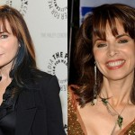 Lauren Koslow Plastic Surgery Before and After Photos