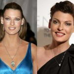 Linda Evangelista Plastic Surgery Before and After Photos