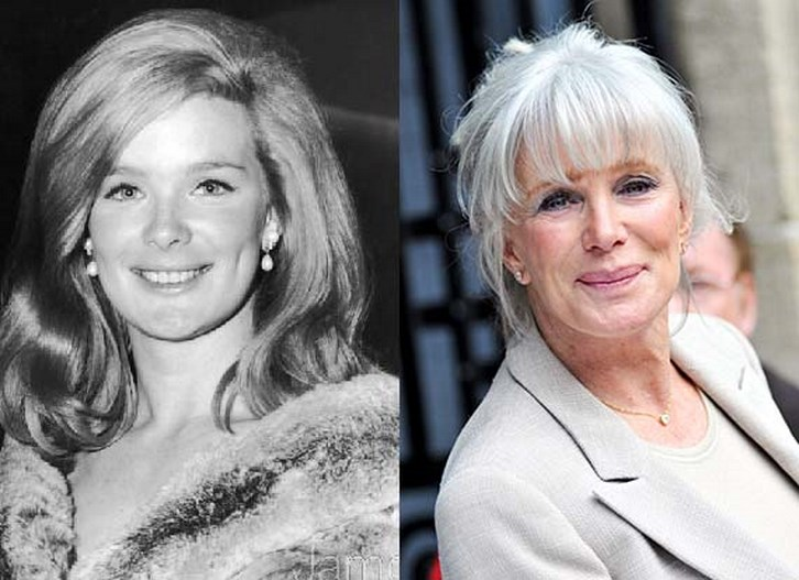 Linda Evans Plastic Surgery Before and After Pictures