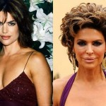 Lisa Rinna Plastic Surgery Lips Before After Pictures