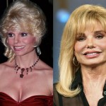 Loni Anderson Plastic Surgery Before and After Photos
