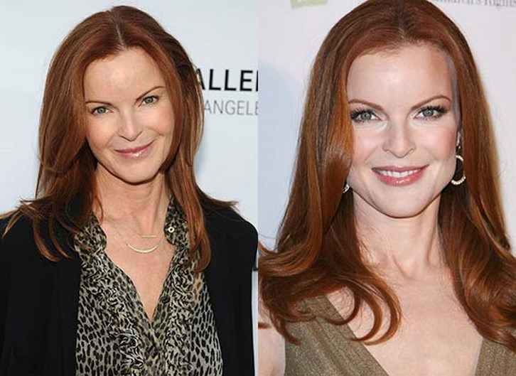 Marcia Cross Plastic Surgery Before and After Photos