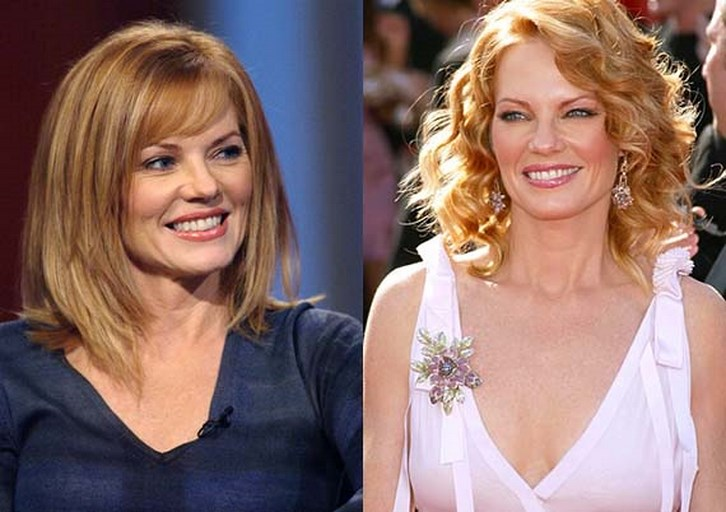 Marg Helgenberger Plastic Surgery Before and After Pictures