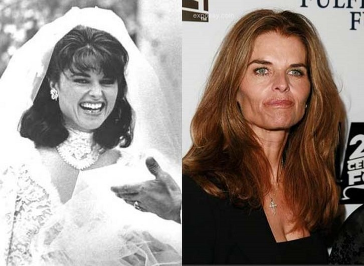 Maria Shriver Plastic Surgery Before and After Photos