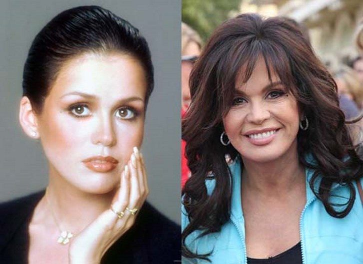 Marie Osmond Plastic Surgery Before and After Photos