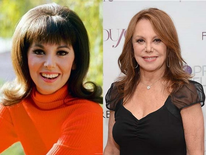 Marlo Thomas Plastic Surgery Lips and Nose Photos
