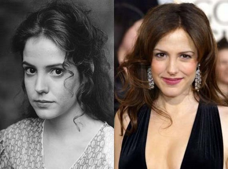 Mary Louise Parker Plastic Surgery Before and After Photos
