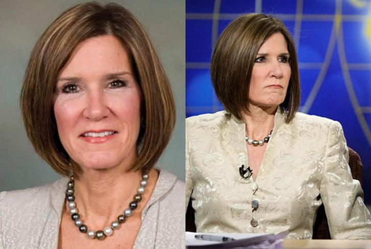 Mary Matalin Plastic Surgery