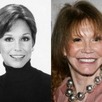 Mary Tyler Moore Plastic Surgery Before and After Pictures