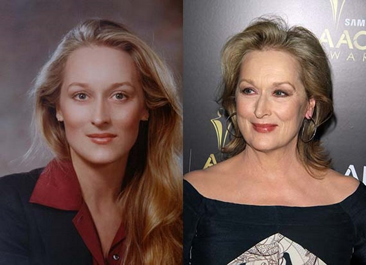 Meryl Streep Plastic Surgery Facelift and Neck Before After Photos