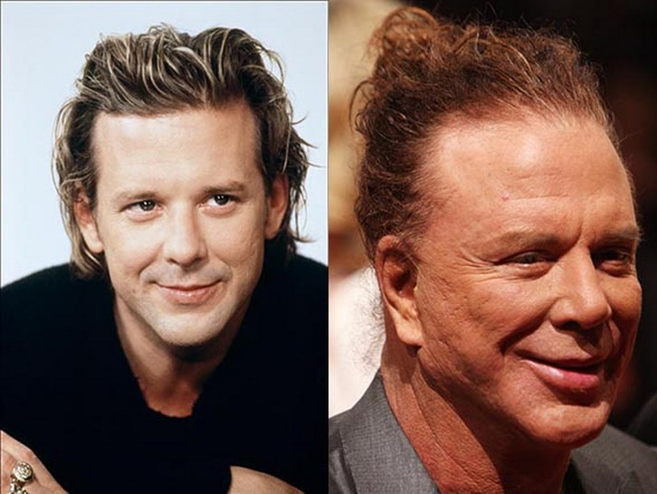 Mickey Rourke Plastic Surgery Gone Wrong Before and After Pictures