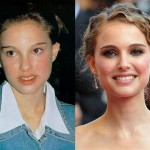 Natalie Portman Nose Job Before and After Photos