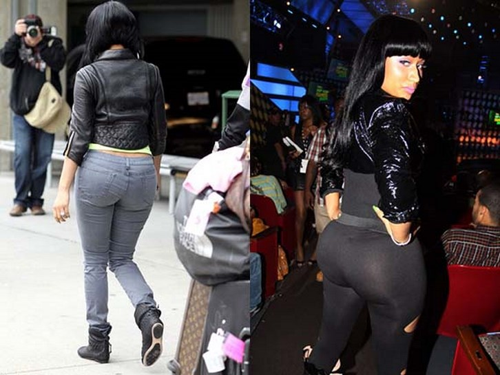 Nicki Minaj Buttock Implants Before and After Photos