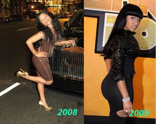 Nicki-Minaj-Plastic-Surgery-256