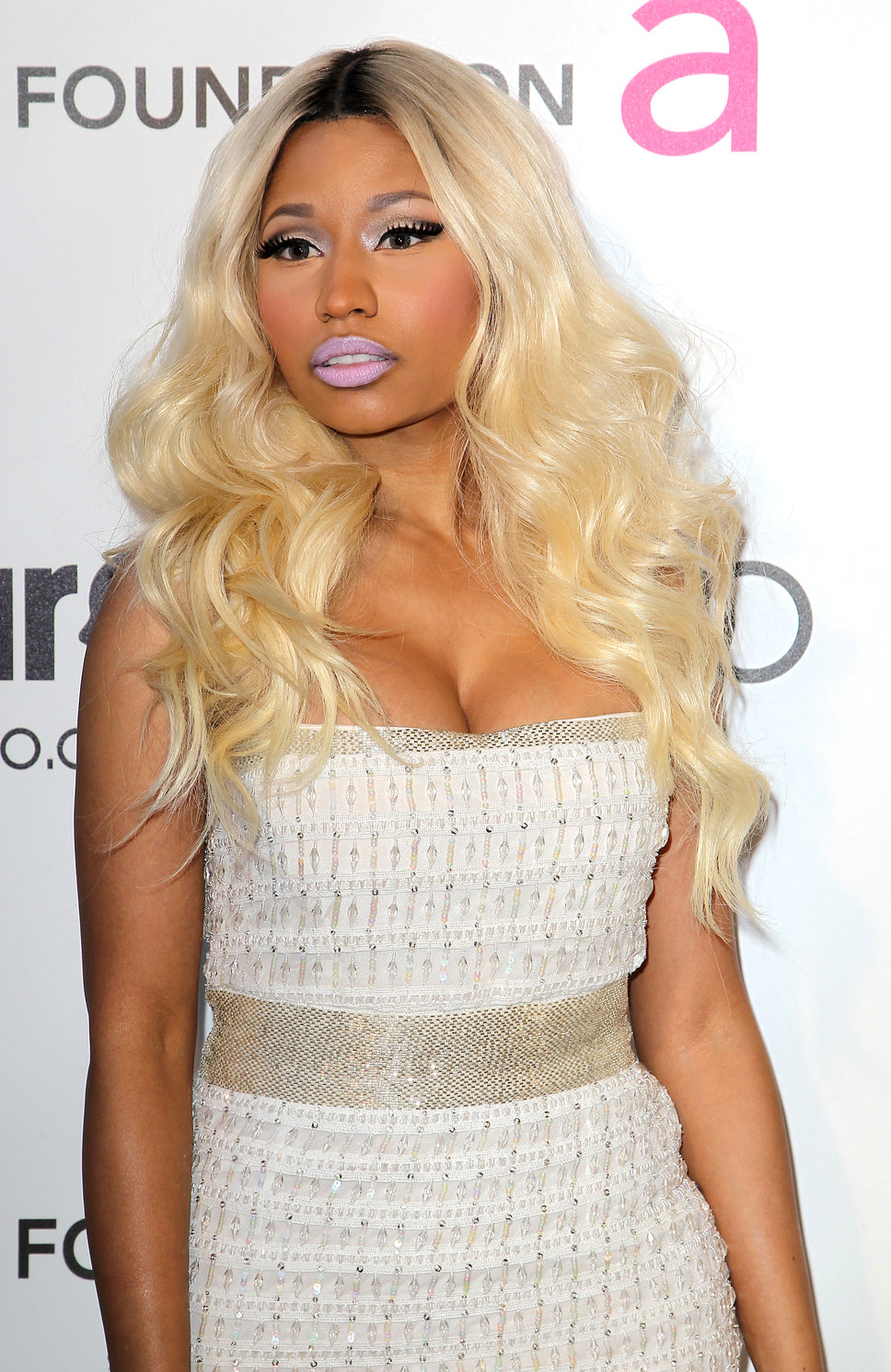 Nicki-Minaj-Plastic-Surgery-3