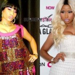 Nicki-Minaj-Plastic-Surgery-327