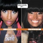 Nicki-Minaj-Plastic-Surgery-697