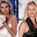 Nicollette Sheridan Plastic Surgery Before and After Photos