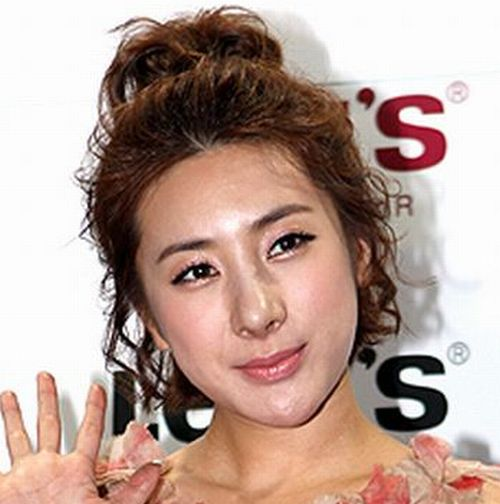 Park-Min-Young-Plastic-Surgery-1433