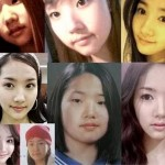 Park-Min-Young-Plastic-Surgery-18