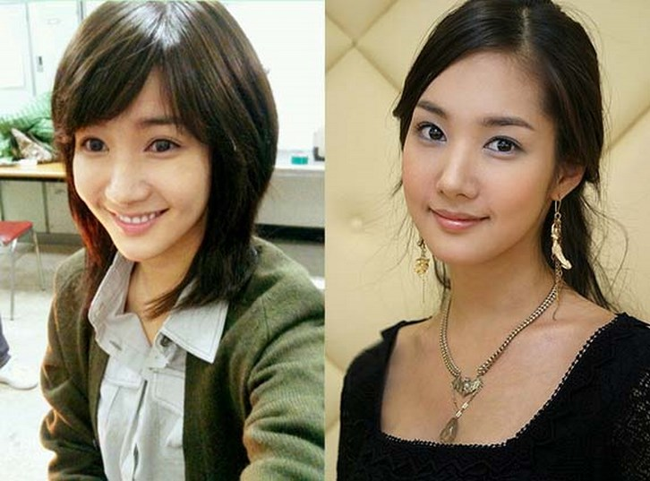 Park Min Young Plastic Surgery Face Before and After Pictures