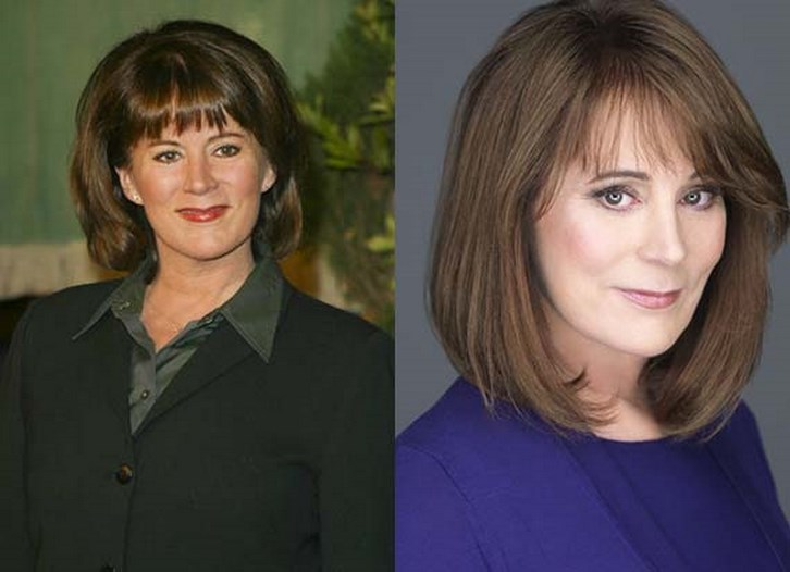 Patricia Richardson Plastic Surgery Before and After Photos