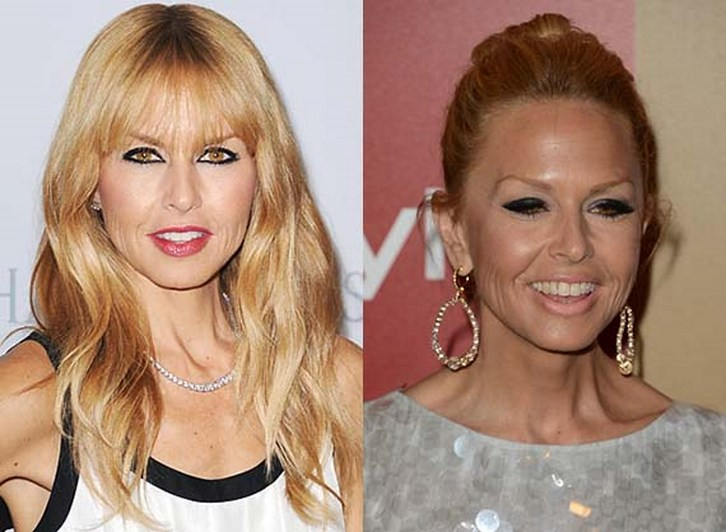 Rachel Zoe Plastic Surgery Before and After Photos