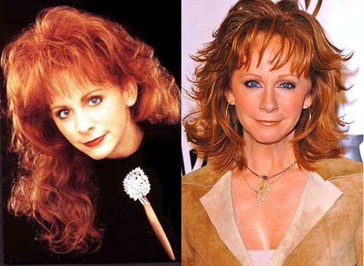 Reba Mcentire Plastic Surgery Before and After Photos