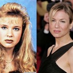 Renee Zellweger Plastic Surgery Face Before and After