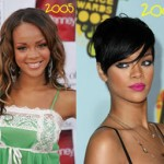 Rihanna Plastic Surgery Before After Photos