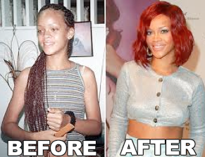Rihanna Plastic Surgery Before and After Photo