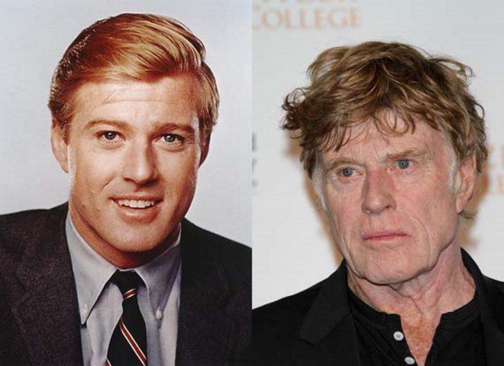 Robert Redford Plastic Surgery Before and After Pictures