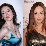 Rose Mcgowan Plastic Surgery Gone Wrong Before and After Pictures