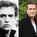 Rupert Everett Plastic Surgery Before and After Photos