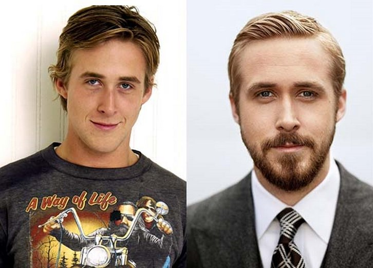 Ryan Gosling Nose Job Before and After Photos