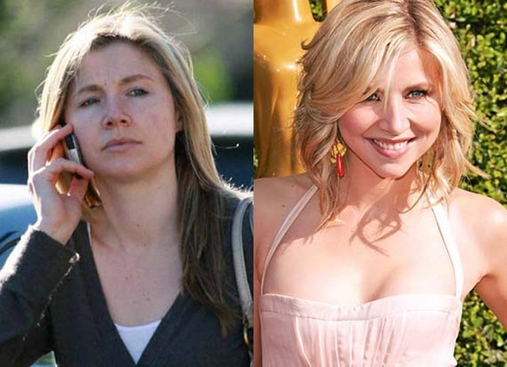 Sarah Chalke Plastic Surgery Before and After Photos